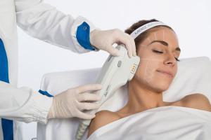 Ultherapy-trattamento-1