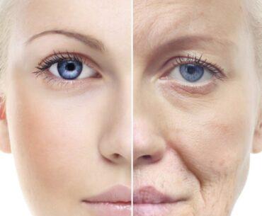 Acido ialuronico: non solo chirurgia estetica